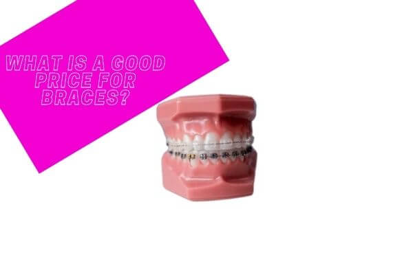 What is a good price for braces